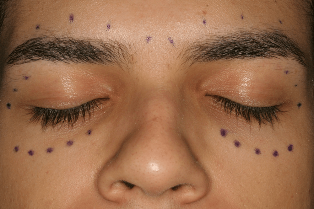 Combination-Treatment-Botox-Restylane