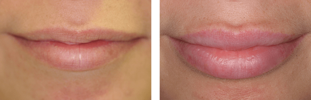 JUVÉDERM-Lip-Enhancement
